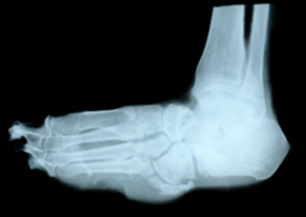 can you have gout in your ankle without swelling diet plan for severe gout how can i lower my uric acid levels naturally